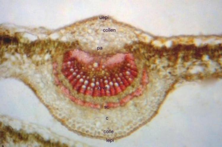 Microscopical characters of E.monogynum leaf midrib (T.S)