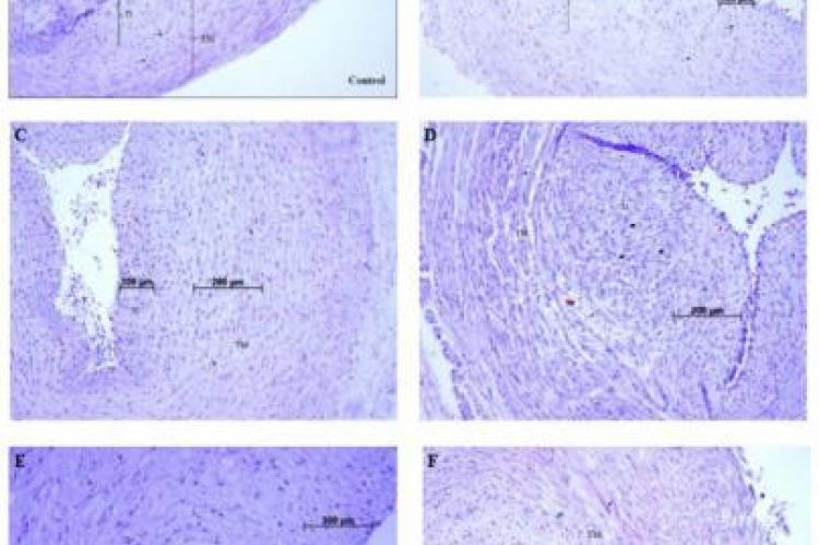 Morphological changes in HUVC