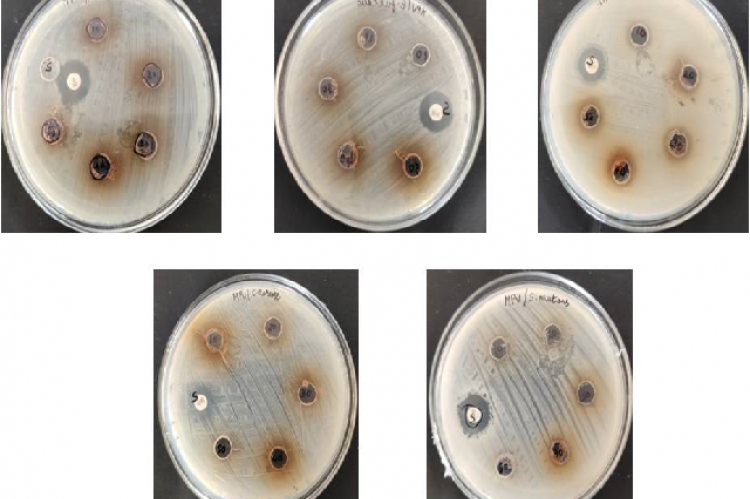 Antimicrobial activity of crude extract