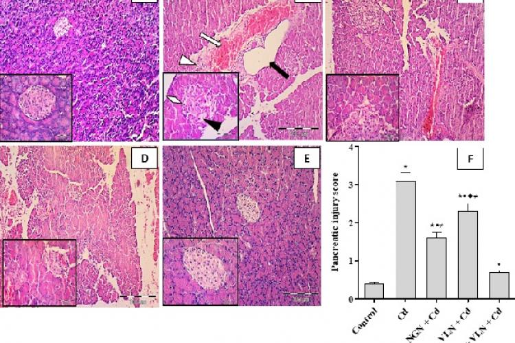 H and E (100×) of rat pancreas and islets of Langerhans