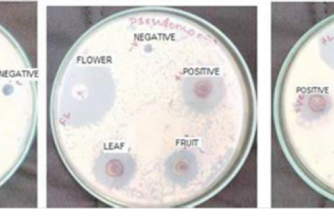 Antibacterial activity of silver nanoparticles.