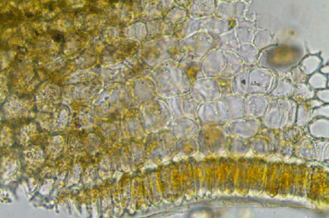 T.S. of corolla showing compactly arranged cells in small sized bud