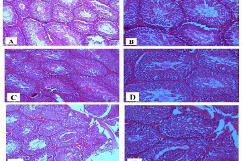 (A, B) Control (ND) rat showing normal and regular seminiferous tubules (ST) architecture; (C, D) NDEL treated rat showing no evidence of histological abnormalities, they showed normal spermatogenesis in the ST; (E,F) HFD treated rat; the seminiferous tubules displayed atrophy and vacuolation of germinal epithelium. (H&E. A, C, and F; X100. B, D and F; X 200)