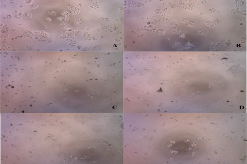 HCT116 cells observation using Dyno Eye microscope. A. Control 1, B. Control 2, C.