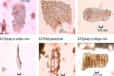 Microscopy of powder of Cichorium intybus fruit