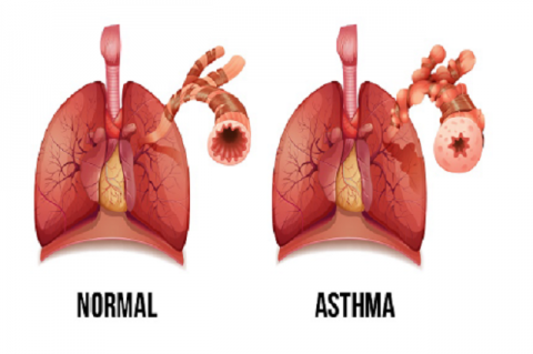 Symptoms of asthma.