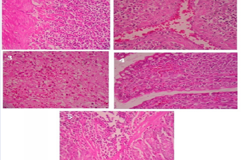 Histopathological Images of normal and treated colon.