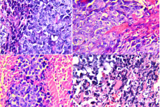 Photomicrographs of sections in solid Ehrlich carcinoma (EC) stained by H and E. (A): Section in muscular tissue of EC bearing mice; (B): Section in muscular tissue of EC treated with RS extract; (C): Section in muscular tissue of EC treated with gamma irradiation; (D): Section in muscular tissue of EC treated with RS extract and gamma irradiation, H and E, ×80.