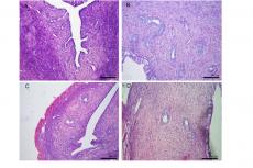 Representative photomicrographs of uterine histology. A = Ovariectomized rats;